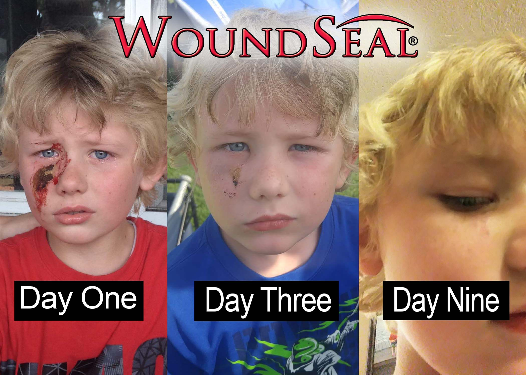 wound seal progression example