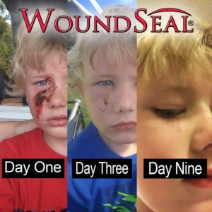 WoundSeal Vial