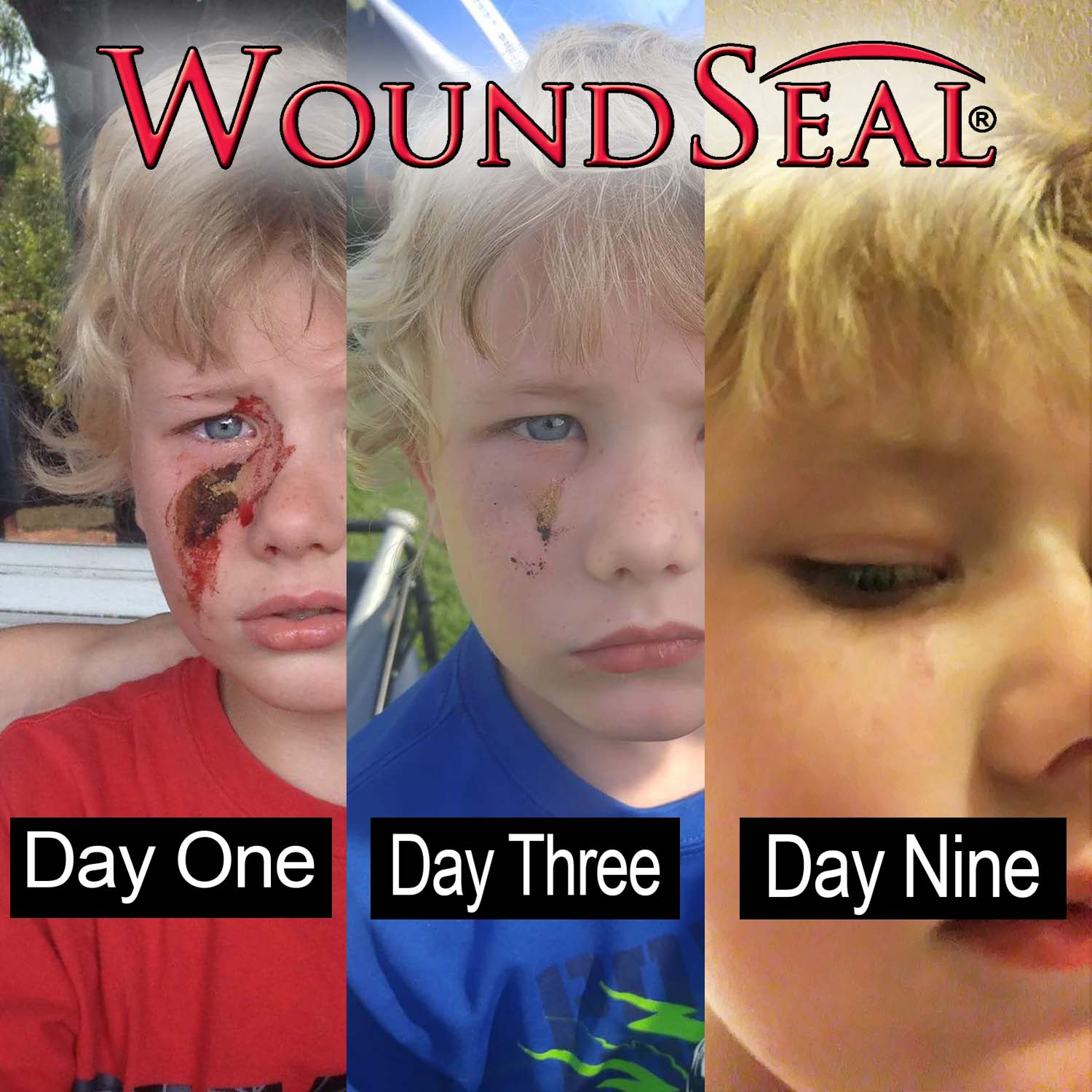 WoundSeal Stop Bleeding Instantly